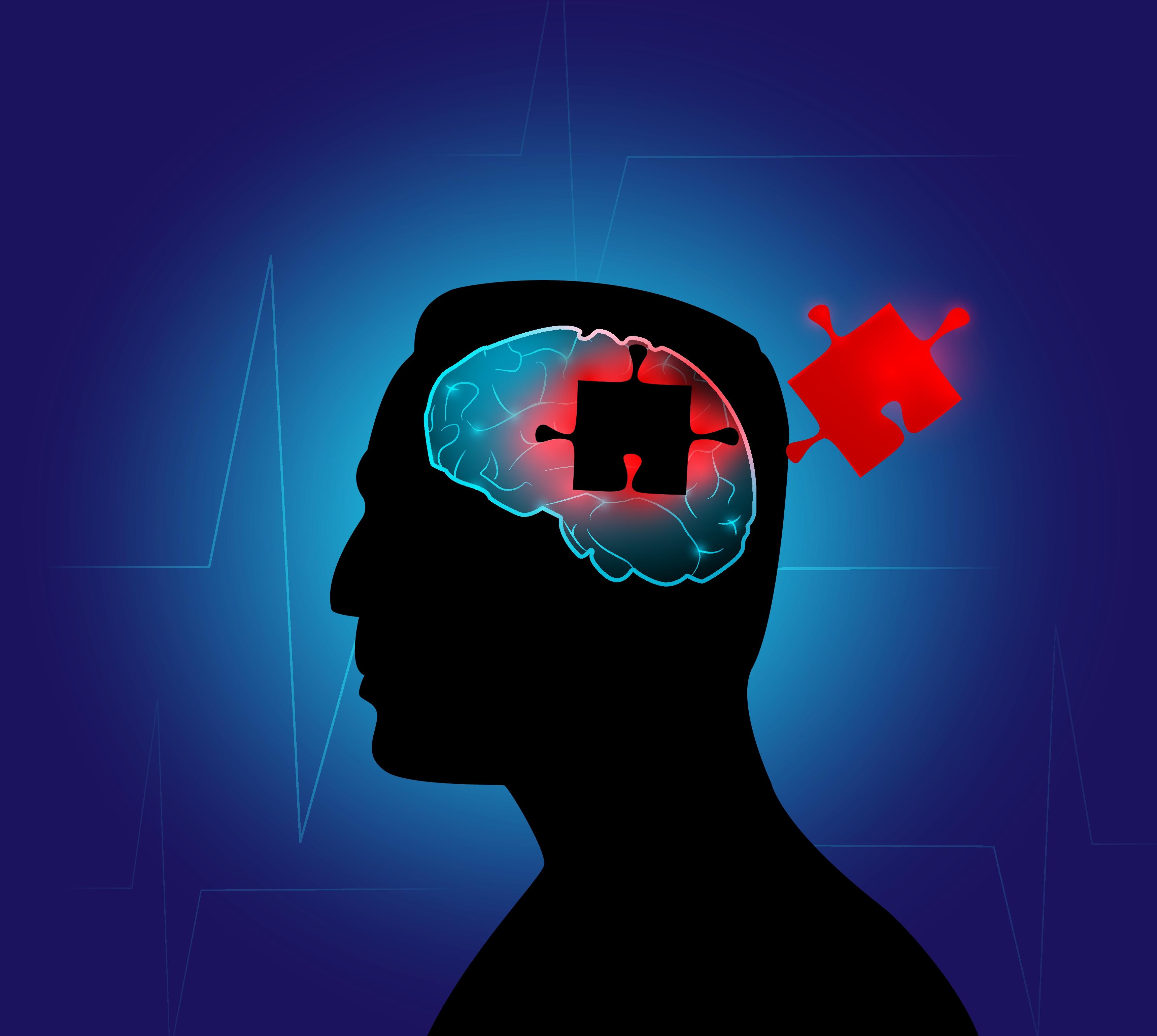 Hjerne 01