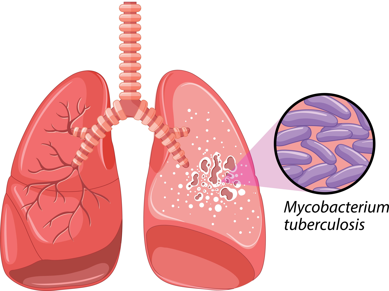 Tuberkulose 02