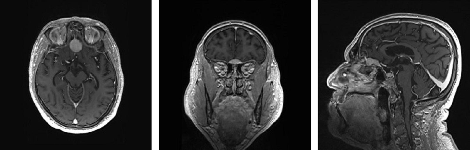 Billede af meningiomer
