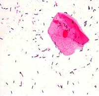 Normal flora i vaginalsekret