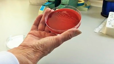 Forskningsnyhed Listeria 01