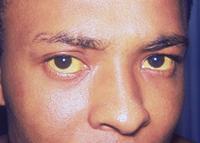 Gulfarvning af det hvide i øjnene som følge af hepatitis A